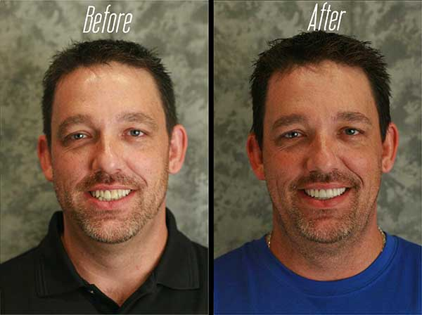Ocala Before And After Teeth Whitening Belleview Before And